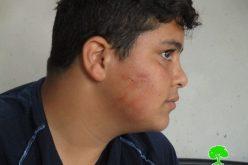 الاعتداء على طفل بالضرب المبرح من قبل المستعمرين في قرية برقة