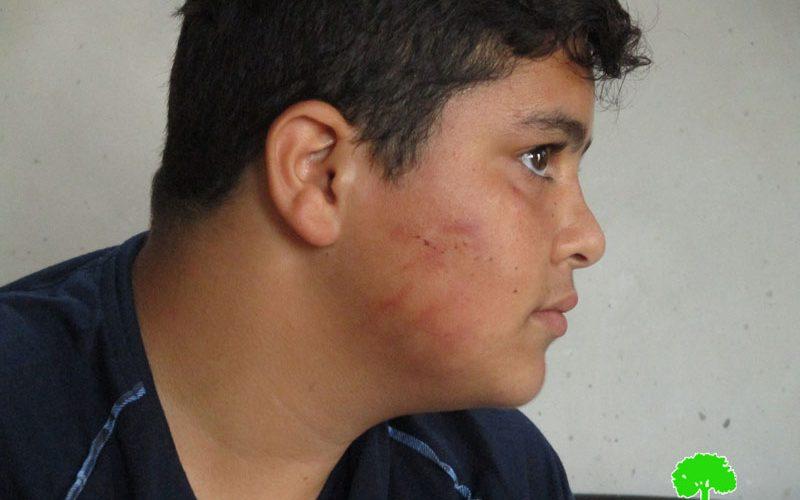 Israeli colonists assault Palestinian kid in Burqa village