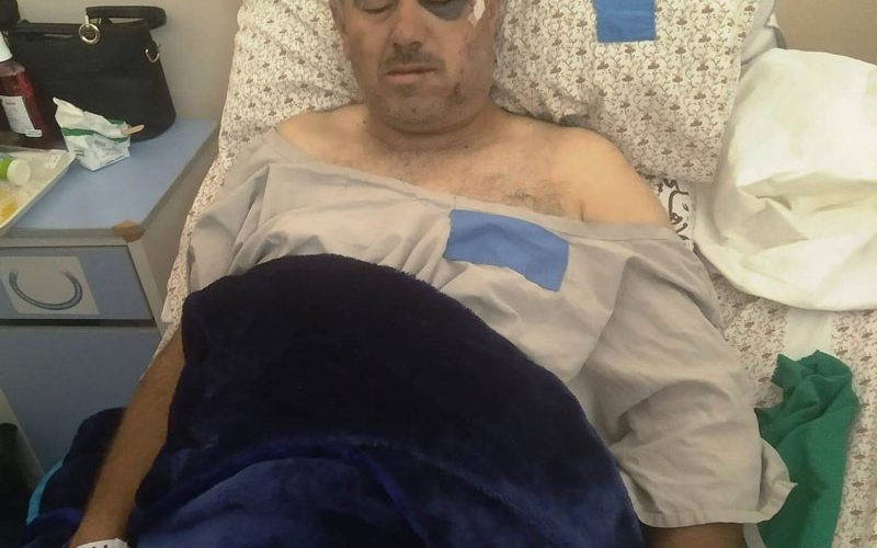 Colonists Attack 'Awad Family in She'ab Al-Butum South Hebron